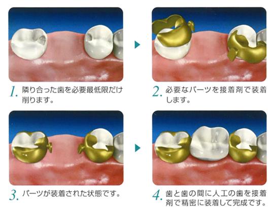 「和田精密歯研株式会社 ヒューマンブリッジ 画像」の画像検索結果